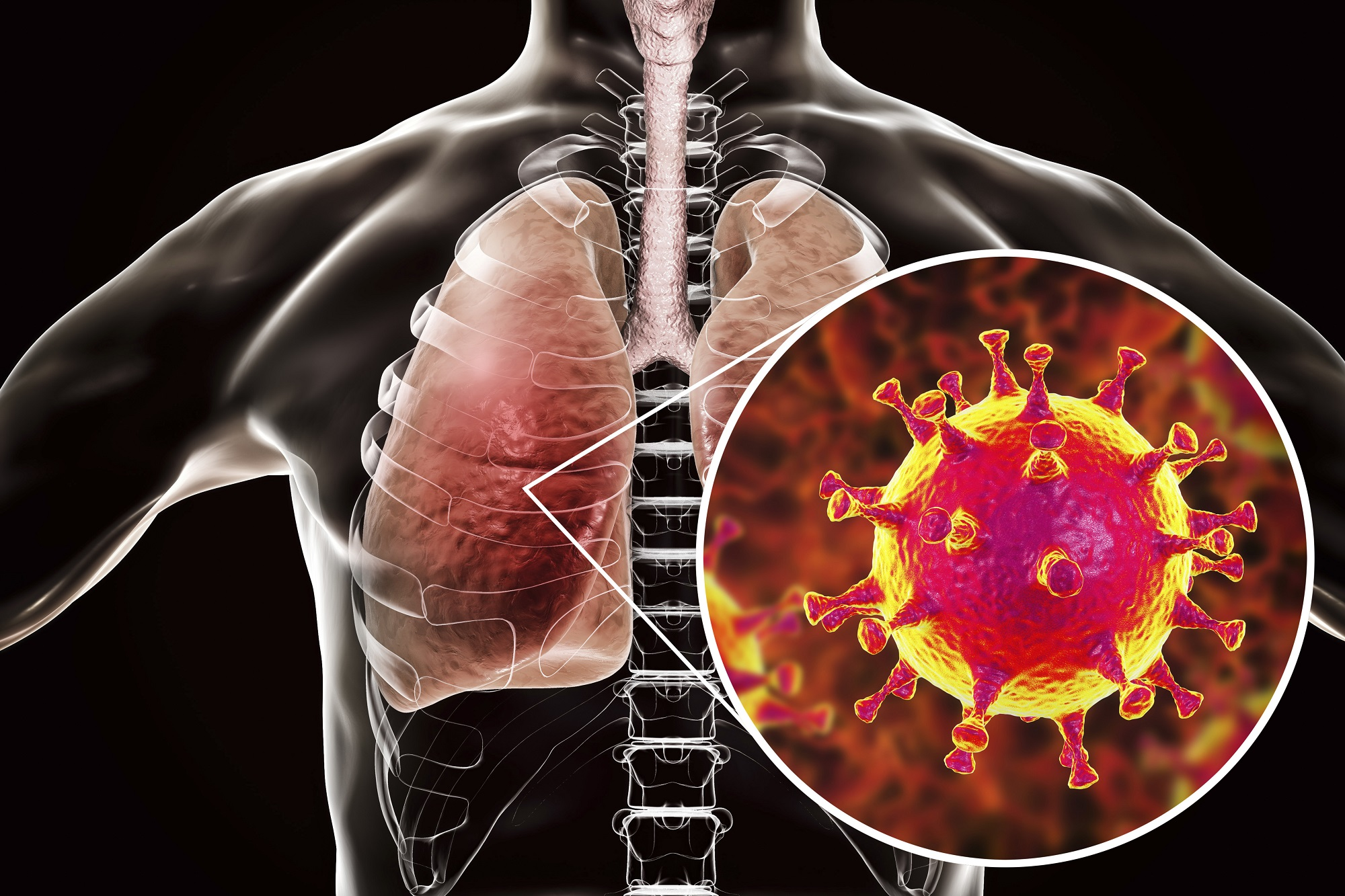 Chủng virus này tấn công trực tiếp vào phổi gây ra những biến chứng nguy hiểm